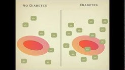 hqdefault - Review Of Haemoglobin A1c In The Management Of Diabetes