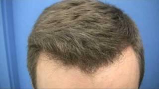 Hair Transplant - 1489 Grafts - Dr Wong