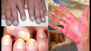 ہاتھ آپ کی صحت کے بارے میں کیا کہتے ہیں؟ حیرت انگیز انکشافات