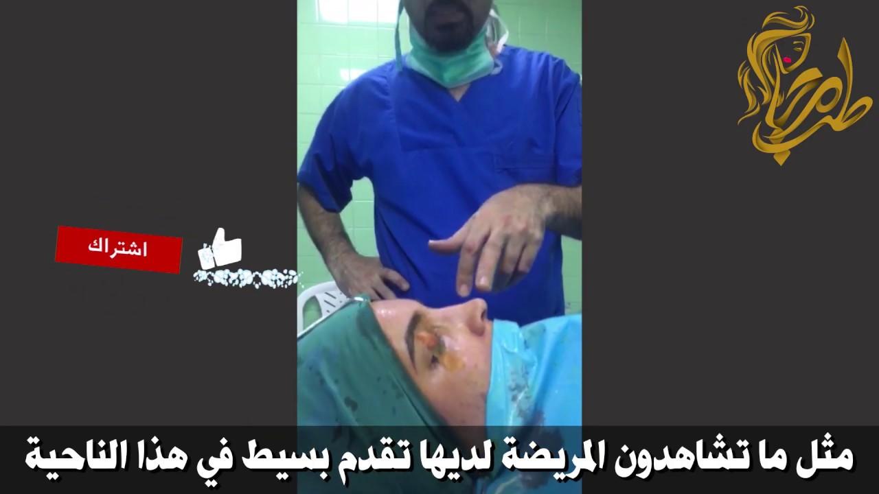 قبل وبعد عملية تجميل الأنف مباشر من داخل غرفة العمليات مع الدكتور علي اكبر صادقي