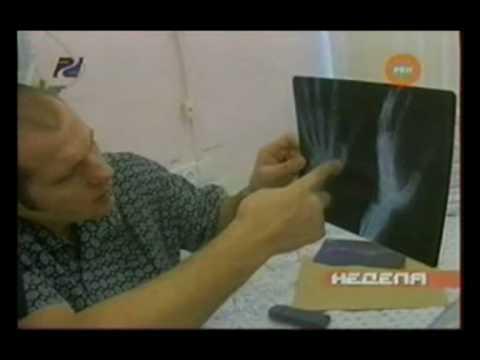 Fedor meets Wanderlei Silva, Old hand injury, You don