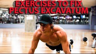 3 Proven Steps To Fix Pectus Excavatum.