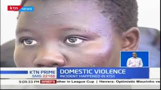 A man in Kisii county has severed a limb of his wife after a domestic quarrel