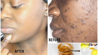 HOW TO CLEAR  DARK SPOTS & HYPERPIGMENTATION FAST + CHEAP | RESULTS IN 17 DAYS