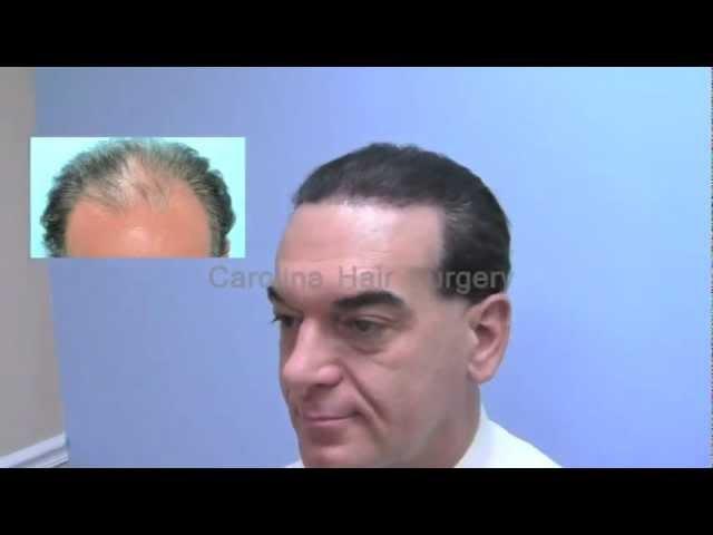 FUE Hair Transplant by Carolina Hair Surgeon, Dr. Michael Vories