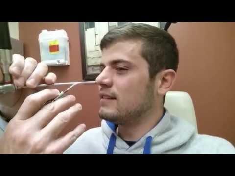Septoplasty | Nasal Splint Removal | Post Surgery