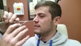 septoplasty   nasal splint removal   post surgery