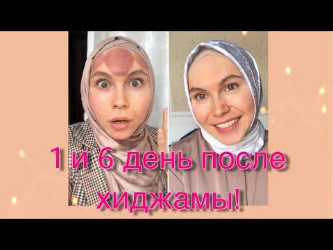 Мое лицо после МОЩНОЙ хиджамы!