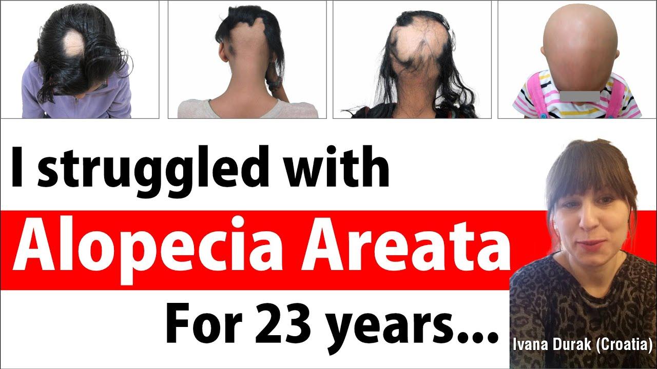 Alopecia Areata Natural & Herbal Treatment - Patchy Hair Loss