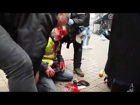 [gilet jaune] Victime des force de l'ordre a bordeaux