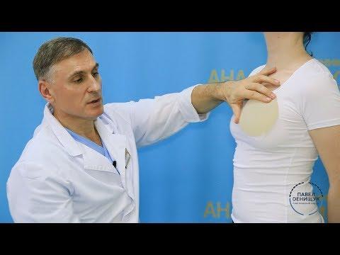 Увеличение груди | Какие импланты выбрать?