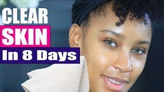 clear skin   skincare routine