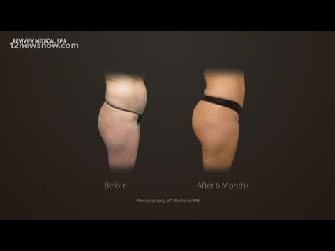 Revivify Medical Spa offers non-surgical liposuction