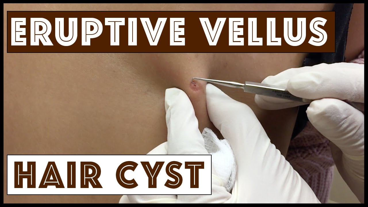 medium resolution of unusual types of cysts eruptive vellus hair cysts part 1 in a series youtube