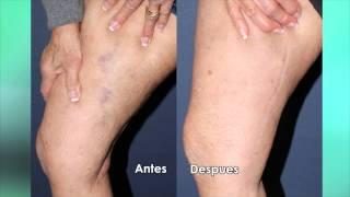 La escleroterapia para venas de la pierna | Dr. Sabrina Fabi Thumbnail