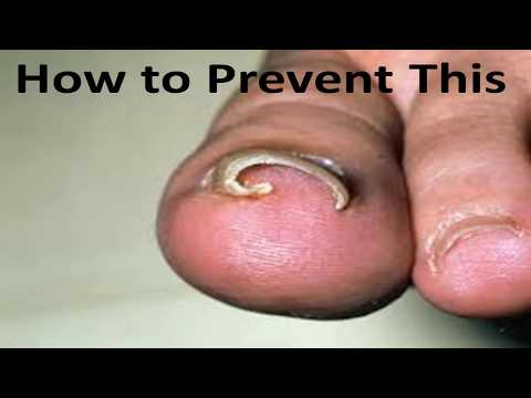 Curved Toenail Treatment - The Complete Ingrown Toenail Guide!
