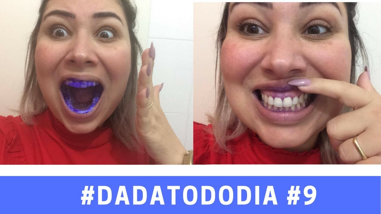 Clareamento Dental Com Violeta Genciana Youtube