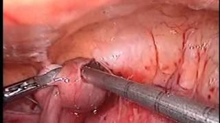Внематочная беременность. Лапароскопия.(Диагноз: Левосторонняя трубная беременность, прервавшаяся по типу трубного аборта. Операция: Лапароскопия...., 2013-08-12T16:03:27.000Z)