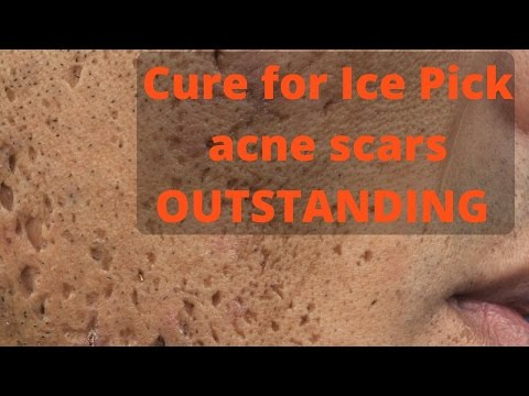 How to treat ice pick acne scars