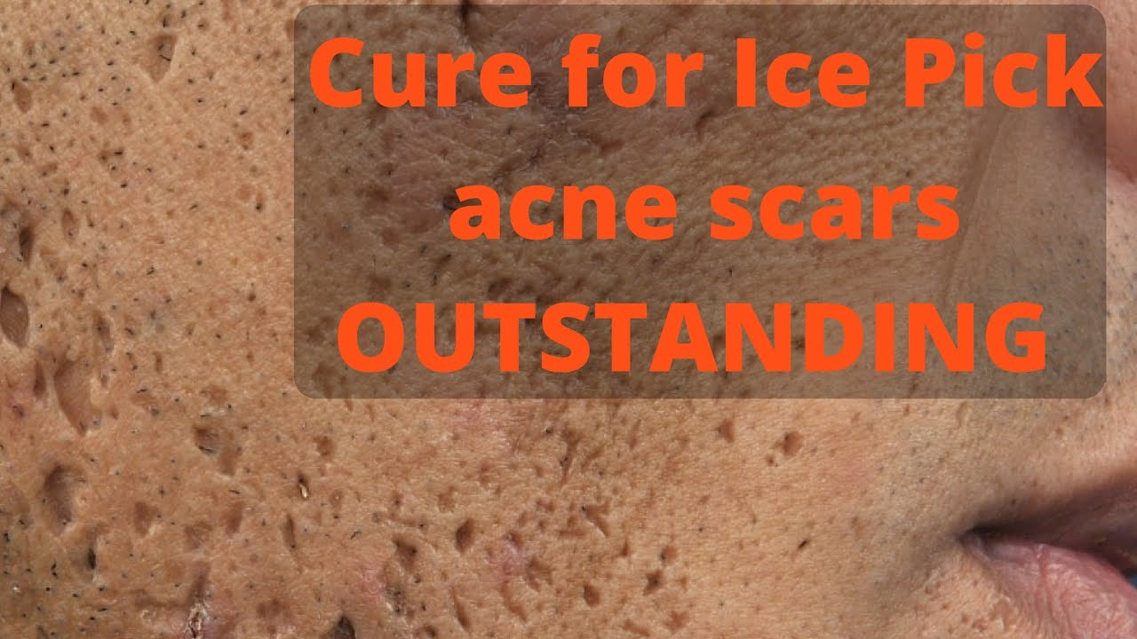 How to treat ice pick acne scars - YouTube