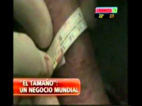 operacion de peneplastia precio argentina