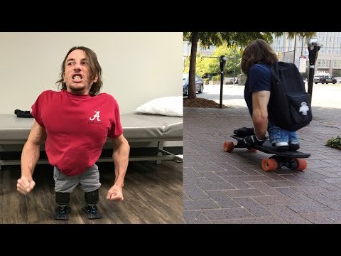 Legless man stands on feet for the first time | Boosting nub shoes