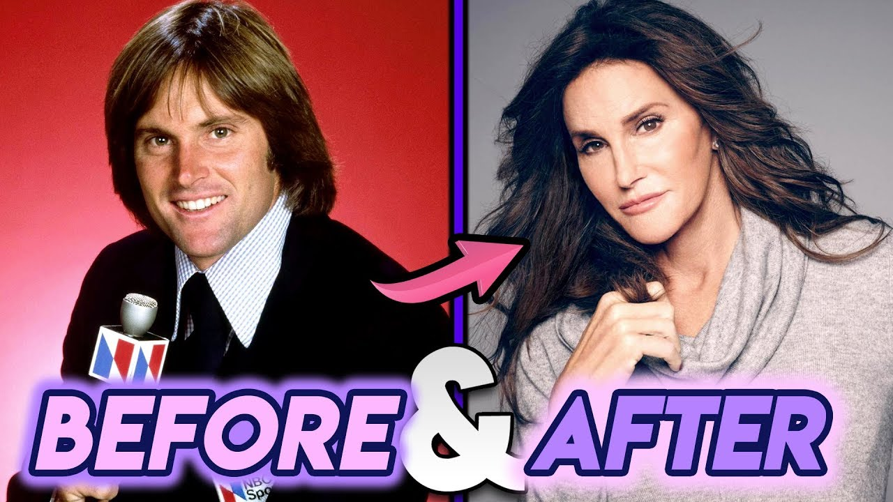 Caitlyn Jenner Before And After Transformations