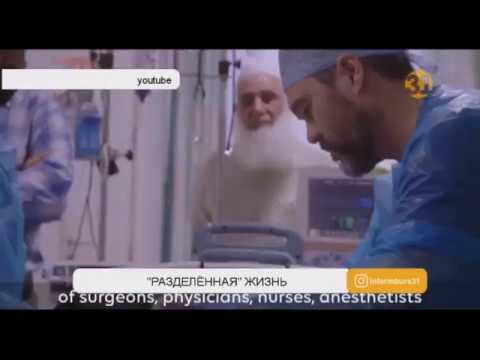 Уникальную операцию по разделению сиамских близнецов провели британские врачи