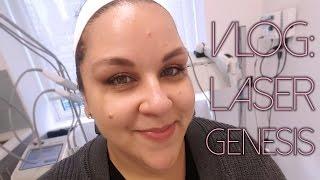 Vlog: Laser Genesis