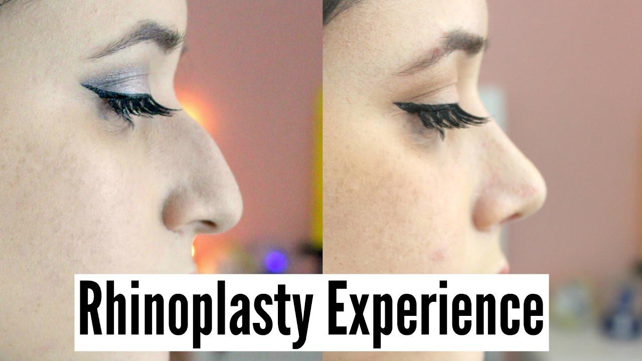 NOSE JOB EXPERIENCE (Rhinoplasty+Septoplasty)| AmyCrouton