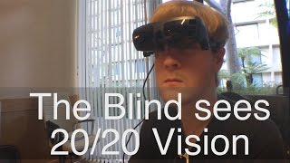 The Blind Seeing 20/20 Vision For The First Time