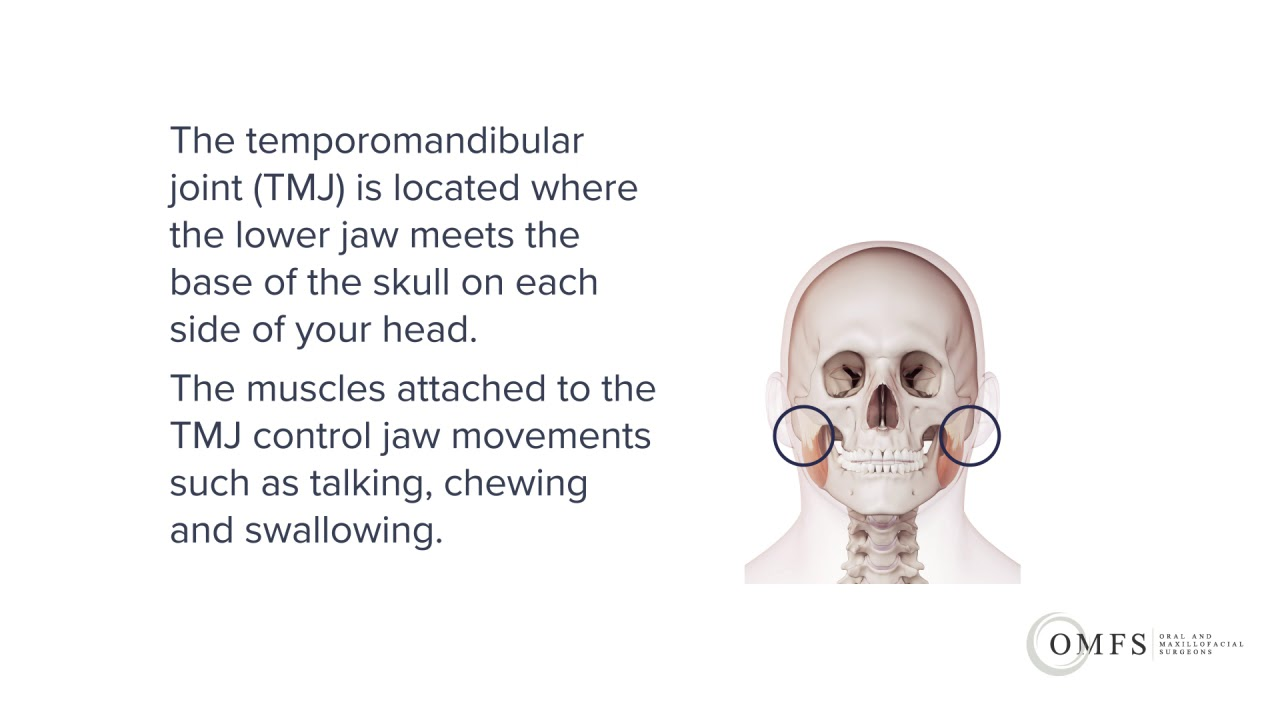 medium resolution of tmj management including surgery melbourne oral and maxillofacial surgeons