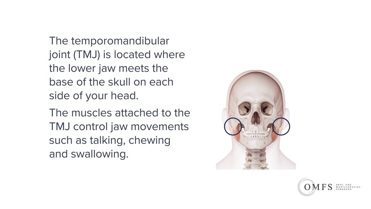 tmj management including surgery melbourne oral and maxillofacial surgeons [ 1280 x 720 Pixel ]