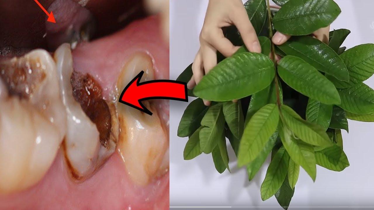 Trị Tận Gốc Sâu Răng Đau Nhức Răng Nhờ Dùng Lá Ổi Theo Cách Này Không Cần Đi Nha Sĩ
