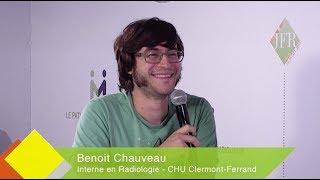 JFR 2017 - BENOIT CHAUVEAU - Interne en Radiologie - CHU Clermont Ferrand