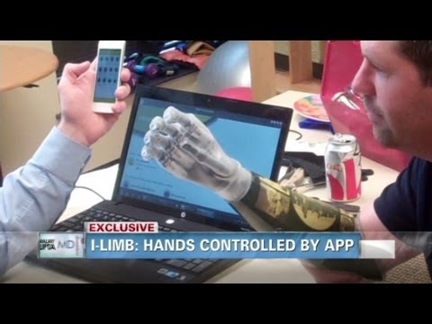 iPhone-controlled bionic hands allow father to hold daughter's hand for first time since accident