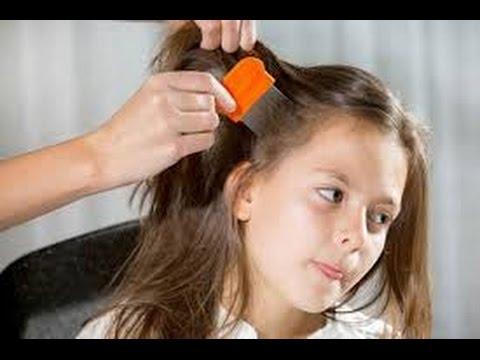 7b50d7e18 (خلطه رهيبه لشعر الاطفال)حولي شعر طفلك الهايش الجاف الي املس ناعم وحريري  بأقل من جنيه. إنتى أجمل مع ندا