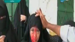 صبايا الخير|  فتاة باليمن تعانى من مرض غريب يتخطى كل الظواهر الخارقة للطبيعة