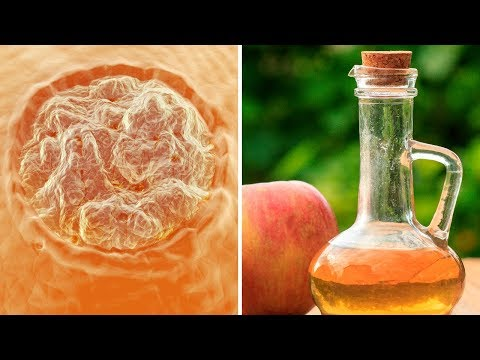 How to Remove Warts at Home Using Apple Cider Vinegar