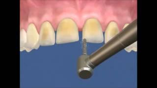 Уроки стоматологии: Как изготавливают виниры в стоматологическом кабинете