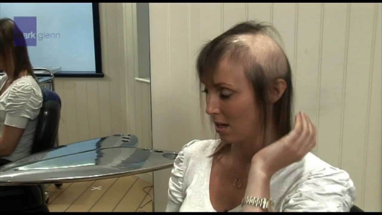 Female Hair Loss Solution Mark Glenn Hair Enhancement