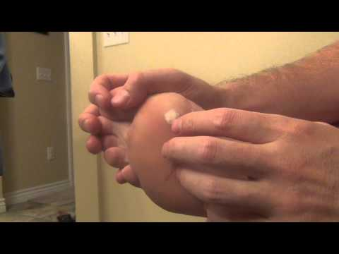 """Best way to get rid of Verruca """"Plantar Wart"""" now - how to use this for fast results"""