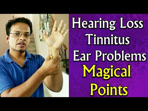 Acupressure Points For All EAR Problems , Hearing Loss , TINNITUS , Ear Pain , Deafness - In Hindi Mp3