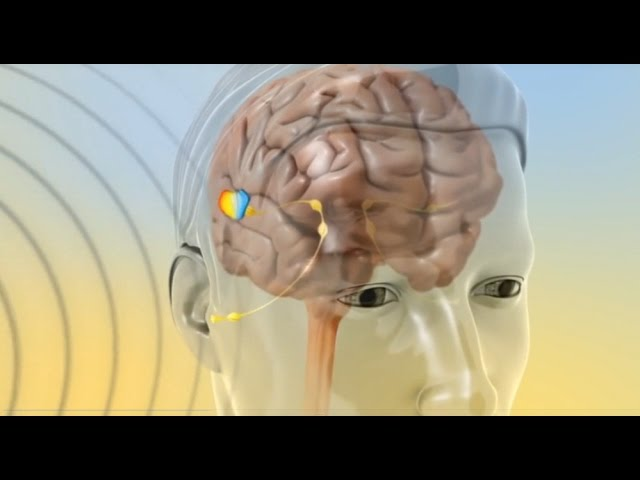 Tinnitus may be associated with areas of strain in this muscle and is usually one sided 2