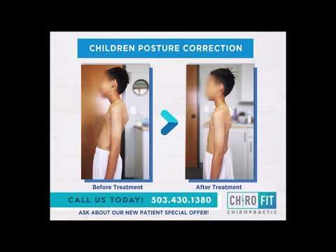 Hunched back / Kyphosis in Children - Beaverton - Hillsboro - Aloha - Tigard Chiropractor