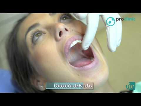 Anestesia: tipos, incompatibilidades y recomendacionesиз YouTube · Длительность: 2 мин29 с