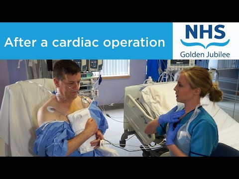 What to expect from physiotherapy immediately after a cardiac operation