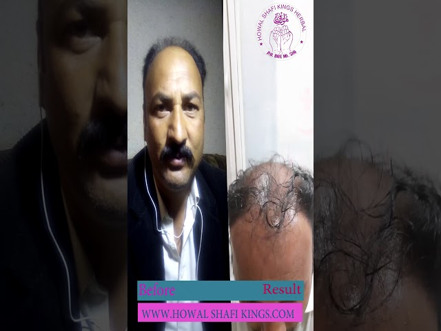 Karishma Hair oil and spray result