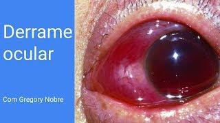 De olhos de manchas sangue nos se como livrar