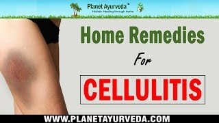 9 Home Remedies for Cellulitis | Bacterial Skin Infection